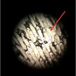 Plasmolyse-Zemen_Carina