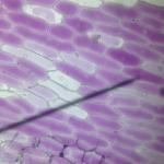 beginnende Plasmolyse-Kals-HLTW21