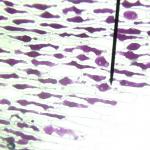 Plasmolyse-Kals-HLTW21-14